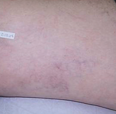 Elós Leg Veins Treatment After