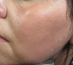 Micropeel and Skincare After