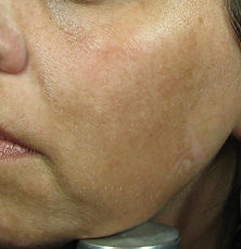 Micropeel and Skincare Before