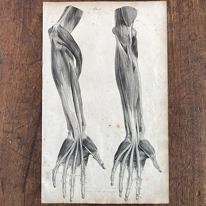 Large Lithograph Print Showing Muscles of Forearm and Hand -  Plate 18
