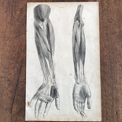 Large Lithograph Print Showing Muscles of Forearm and Hand -  Plate 17