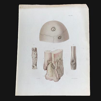 Varieties of Ulceration in Bone - 1849 Plate IV