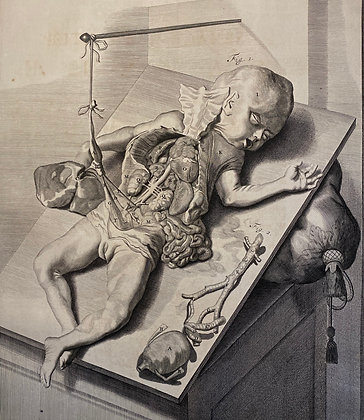 Dissection of an infant - Very Large 17th Century Engraving