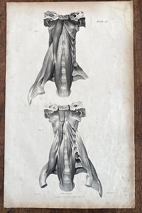 Large Lithograph Print Showing Muscles of the Upper Trunk -  Plate 45