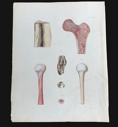 Diffuse Suppuration In Bone - 1849 Plate I