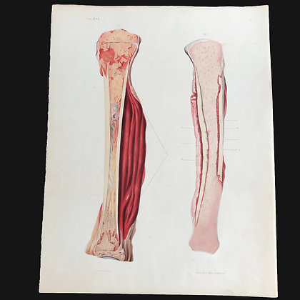 Inflammation in the Medullary Membrane - 1849 Plate VII