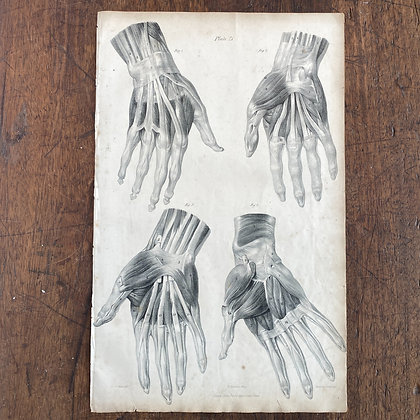 Large Lithograph Print Showing Muscles of the Hand -  Plate 21