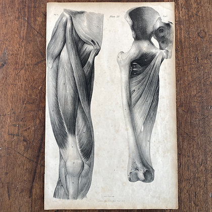 Large Lithograph Print Showing Muscles of the Thigh -  Plate 32