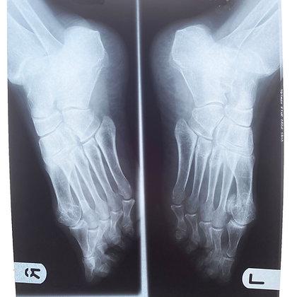 Feet X-Ray