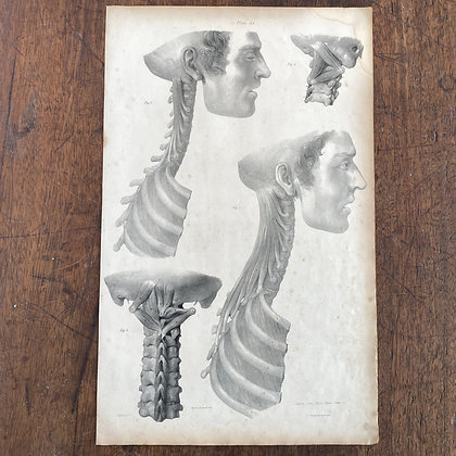 Large Lithograph Print Showing Muscles of the Trunk -  Plate 44