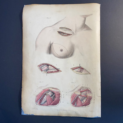 Surgical Diagrams Showing Partial Masectomy - Lithograph 1875