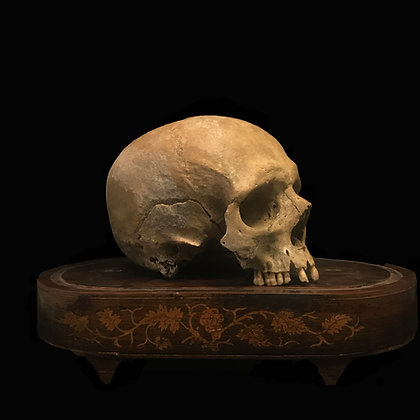 Male Human Skull