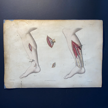 Surgical Procedure Diagrams Lower Limb - Lithograph 1875