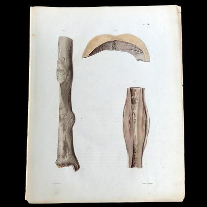 Circumscribed Swelling of Bone - 1849 Plate II