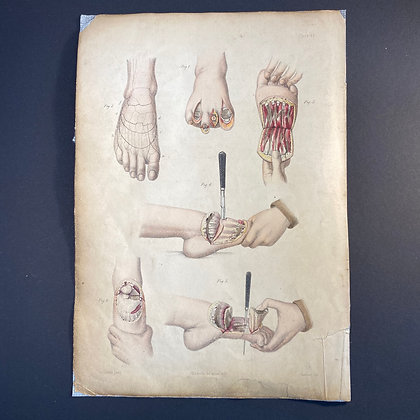 Surgical Diagrams Showing Partial Amputation of Foot - Lithograph 1875