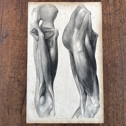 Large Lithograph Print Showing Muscles of the Hip -  Plate 35