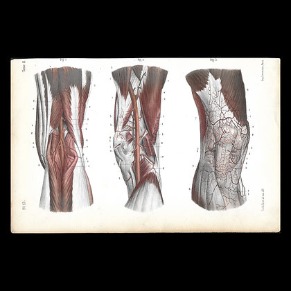 Plate 23 - Arteries of the Knee. Original 1847 Print.