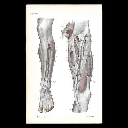 Plate 57 - Tendon of the Front of Leg. Original 1866 Print.
