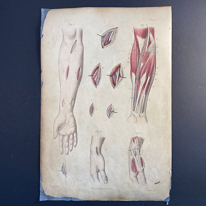 Surgical Diagrams Showing Forearm and Hand - Lithograph