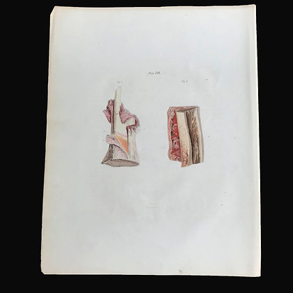 Necrosis and Exfoliation, Consequent to Injury - 1849 Plate III