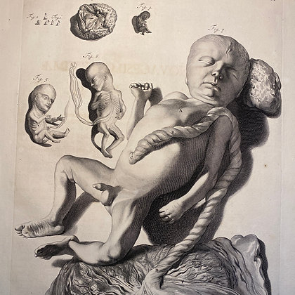 Neonatal infant -  Very Large 17th Century Engraving