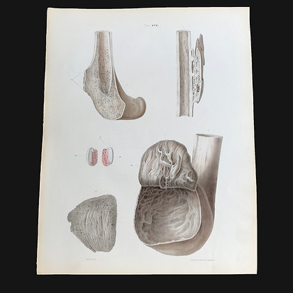 Varieties of Exostosis - 1849 Plate XIV