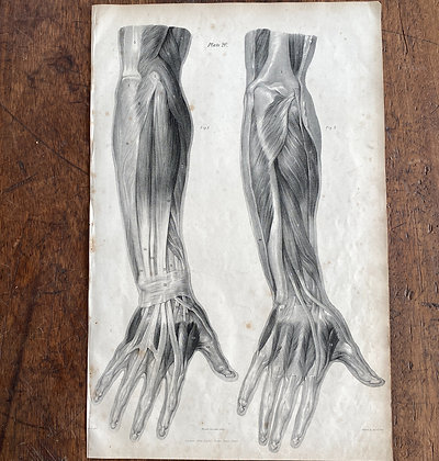 Large Lithograph Print Showing Muscles of the Hand -  Plate 20