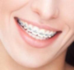 ortodontia na mooca