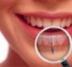 implante dentario na mooca