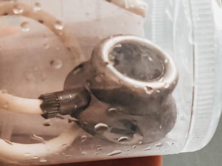 Alles über einen Portkatheter bei Morbus Crohn