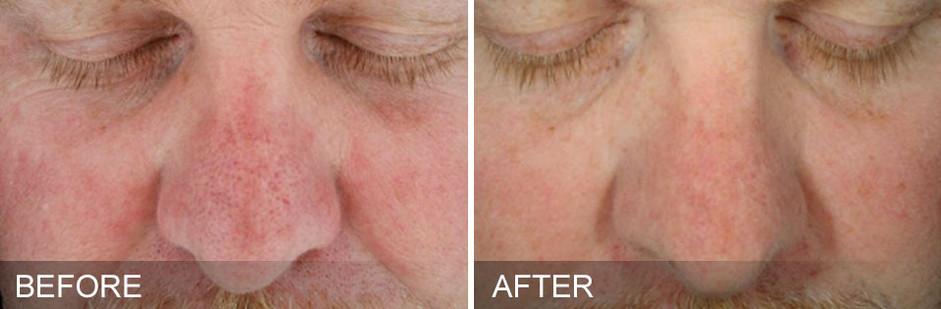 before-after-SunDamage.jpg