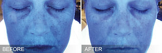 before-after-hydration.jpg