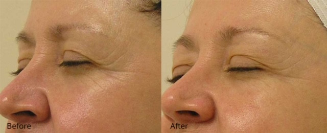 Crows Feet - Before and After.jpg