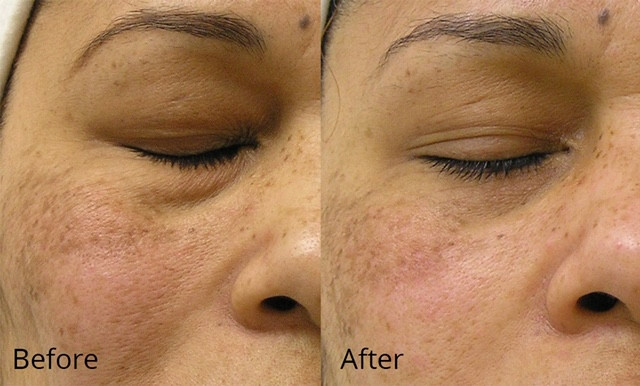 Dull Skin - Before and After.jpg