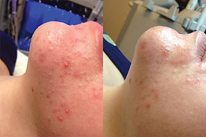 acne before and after.jpg