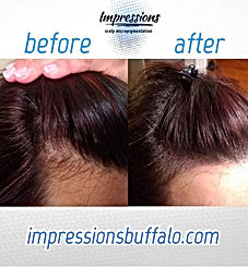 Women... Have thinning hair_  Look what