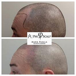 Receding temple area restored with scalp