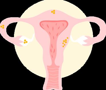 Uterus - IMG.png
