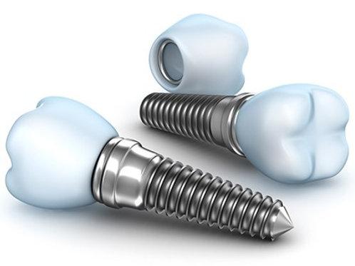 Impianto in titanio e dente in ceramica