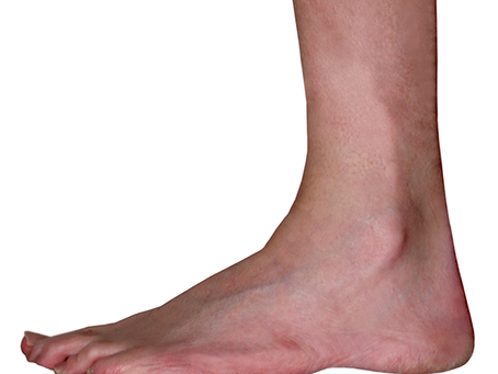 The Ankle Joint