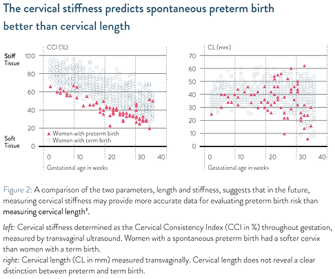 The cervical stiffness is more predictive than cervical length