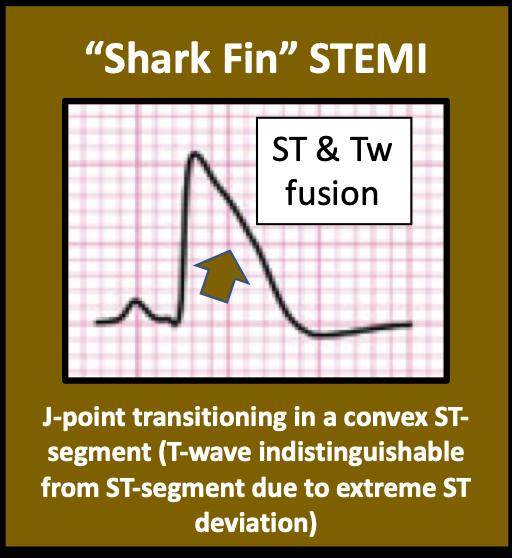 Shark Fin STEMI