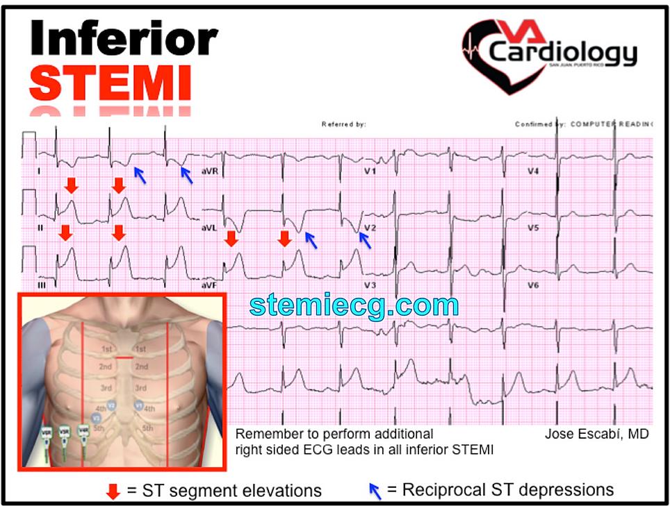 33 12 50 20 >> Mastering STEMI ECG