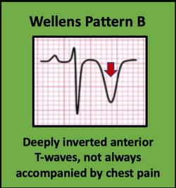 Wellens Pattern B