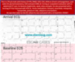 TYSS ECG Challenge 38.png