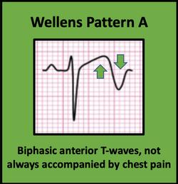 Wellens Pattern A