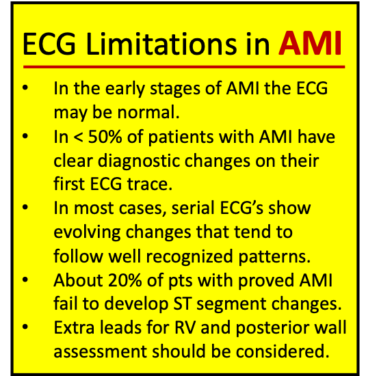 ECG Limitation in AMI