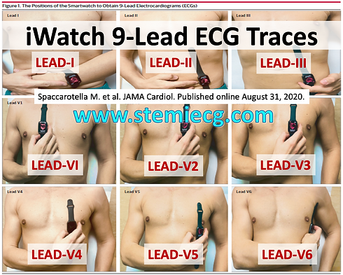 iWatch 9Lead ECG.png