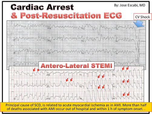 Mastering STEMI ECG; ECG after cardiac arrest