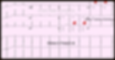 Mastering STEMI ECG; Recognized Wellen's Patterns